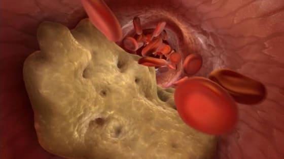 Benefícios da proteína isolada de soja - Controle do colesterol