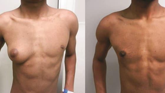 Ginecomastia masculina tratamentos