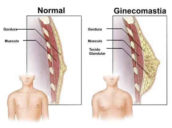 O que causa ginecomastia masculina?