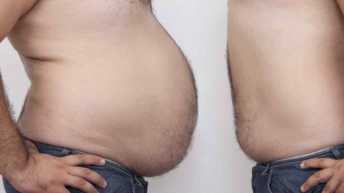 Quando estamos emagrecendo por onde sai a gordura?