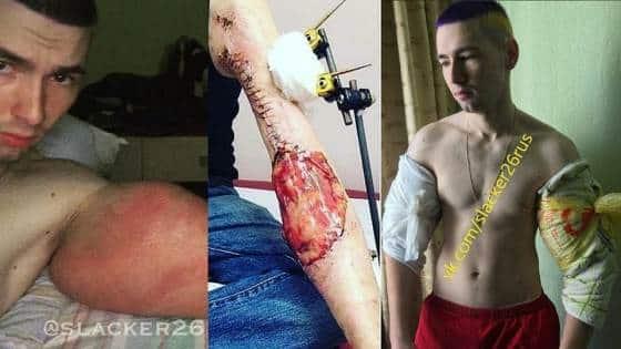Cirurgia para remoção do óleo nos bíceps